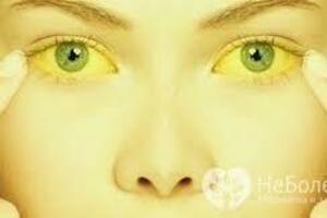 Ахолия: причини виникнення та основні симптоми, способи лікування захворювання
