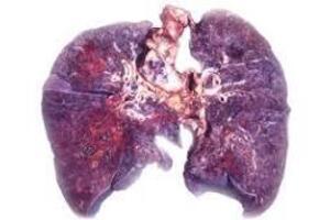 Кандидоз легких: причини виникнення та основні симптоми, способи лікування захворювання