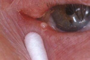 Каналикулит: причини виникнення та основні симптоми, способи лікування захворювання