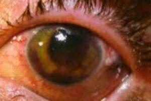 Контузии глаза: причини виникнення та основні симптоми, способи лікування захворювання