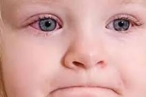Конъюнктивит у детей: причини виникнення та основні симптоми, способи лікування захворювання