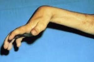 Контрактуры суставов: причини виникнення та основні симптоми, способи лікування захворювання