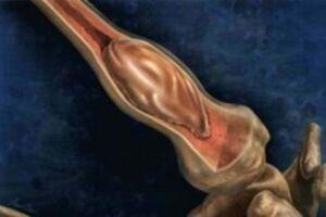 Костная киста: причини виникнення та основні симптоми, способи лікування захворювання