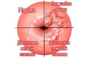 Рак шейки матки: причины возникновения и основные симптомы, способы лечения заболевания