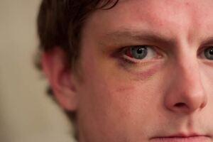 Механические повреждения глаз: причини виникнення та основні симптоми, способи лікування захворювання
