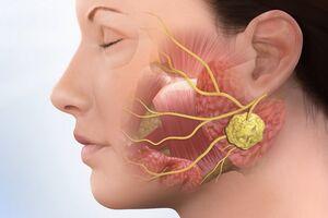 Кисты слюнных желез: причины возникновения и основные симптомы, способы лечения заболевания