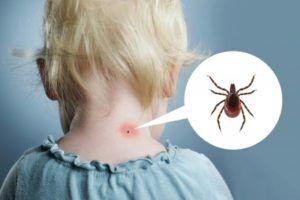 Клещевой вирусный энцефалит у детей: причини виникнення та основні симптоми, способи лікування захворювання