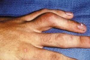 Контрактура Вайнштейна: причини виникнення та основні симптоми, способи лікування захворювання