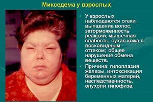 Микседема: причини виникнення та основні симптоми, способи лікування захворювання