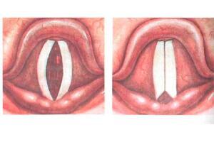 Миопатический парез гортани: причини виникнення та основні симптоми, способи лікування захворювання