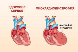 Миокардиодистрофия: причины возникновения и основные симптомы, способы лечения заболевания