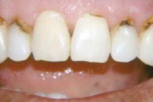 Кариес корня зуба: причини виникнення та основні симптоми, способи лікування захворювання