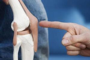 Киста менисков: причини виникнення та основні симптоми, способи лікування захворювання
