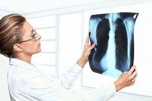 Кардиогенный отек легких: причины возникновения и основные симптомы, способы лечения заболевания
