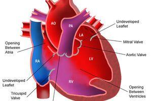 Митрально-аортальный порок: причини виникнення та основні симптоми, способи лікування захворювання