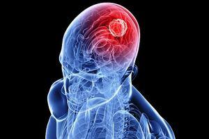 Медуллобластома: причины возникновения и основные симптомы, способы лечения заболевания