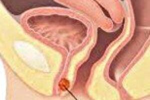 Карункул уретры: причини виникнення та основні симптоми, способи лікування захворювання