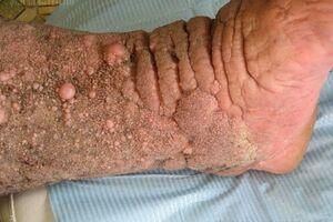 Карциноидный папилломатоз кожи Готтрона: причини виникнення та основні симптоми, способи лікування захворювання
