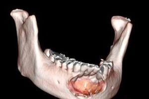 Кисты челюстные: причини виникнення та основні симптоми, способи лікування захворювання