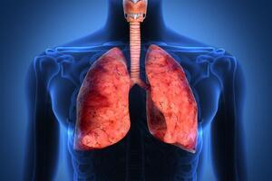 Карциноид бронха: причини виникнення та основні симптоми, способи лікування захворювання