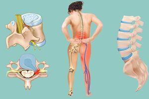 Межпозвоночная грыжа поясничного отдела: причины возникновения и основные симптомы, способы лечения заболевания