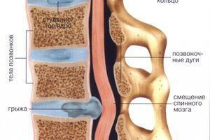 Межпозвоночная грыжа грудного отдела: причини виникнення та основні симптоми, способи лікування захворювання