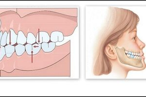 Мезиальный прикус: причини виникнення та основні симптоми, способи лікування захворювання