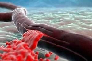 Кровоизлияние в желудочки головного мозга: причини виникнення та основні симптоми, способи лікування захворювання