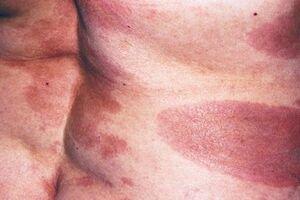 Крупнобляшечный парапсориаз: причини виникнення та основні симптоми, способи лікування захворювання