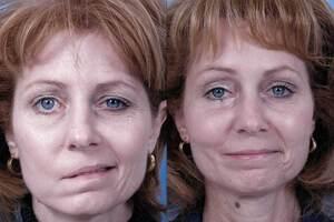 Неврит лицевого нерва: причини виникнення та основні симптоми, способи лікування захворювання