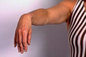 Невропатия лучевого нерва: причини виникнення та основні симптоми, способи лікування захворювання