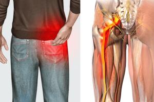 Невропатия седалищного нерва: причины возникновения и основные симптомы, способы лечения заболевания
