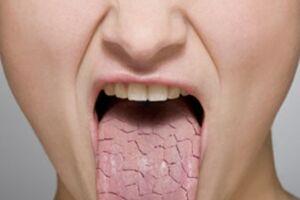 Ксеростомия: причини виникнення та основні симптоми, способи лікування захворювання