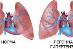 Лёгочная гипертензия: причини виникнення та основні симптоми, способи лікування захворювання