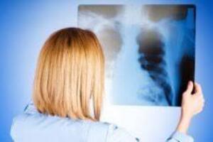 Криптогенная организующаяся пневмония: причини виникнення та основні симптоми, способи лікування захворювання