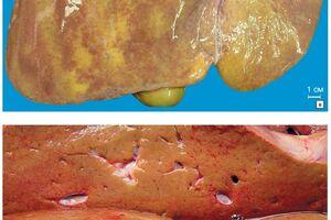 Липоидозы: причини виникнення та основні симптоми, способи лікування захворювання
