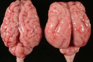Лиссэнцефалия: причини виникнення та основні симптоми, способи лікування захворювання