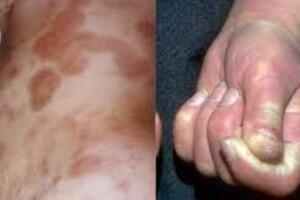 Склеродермия: причины возникновения и основные симптомы, способы лечения заболевания