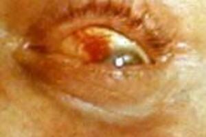 Лихорадка паппатачи: причини виникнення та основні симптоми, способи лікування захворювання