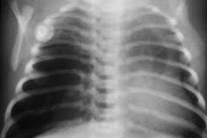 Лобарная эмфизема: причины возникновения и основные симптомы, способы лечения заболевания