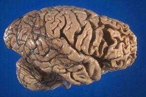 Лобно-височная деменция: причини виникнення та основні симптоми, способи лікування захворювання