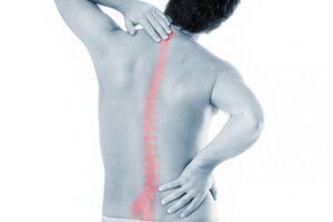 Лордоз: причины возникновения и основные симптомы, способы лечения заболевания