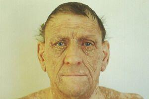 Болезнь Фавра-Рокушо: причини виникнення та основні симптоми, способи лікування захворювання