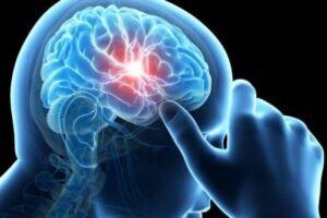 Болезнь Маркиафава-Биньями: причини виникнення та основні симптоми, способи лікування захворювання