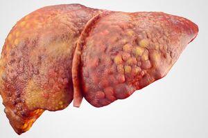 Некроз печени: причини виникнення та основні симптоми, способи лікування захворювання