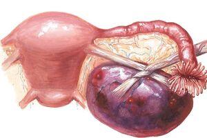 Некроз миоматозного узла: причини виникнення та основні симптоми, способи лікування захворювання