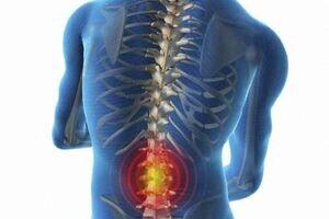 Люмбаго: причины возникновения и основные симптомы, способы лечения заболевания