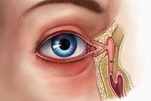 Непроходимость носослезного канала: причины возникновения и основные симптомы, способы лечения заболевания
