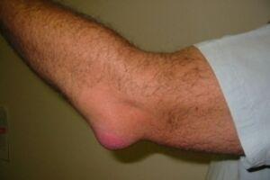 Киста локтевого сустава: причини виникнення та основні симптоми, способи лікування захворювання