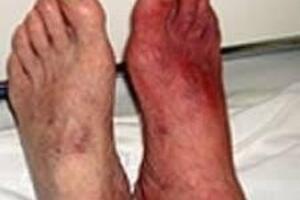 Облитерирующий эндартериит: причини виникнення та основні симптоми, способи лікування захворювання